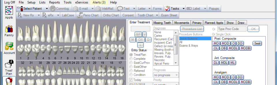 Intraoral Camera Software for Open Dental